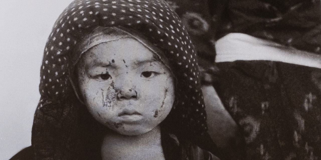 una foto di Yosuke Yamahata del 10 agosto 1945